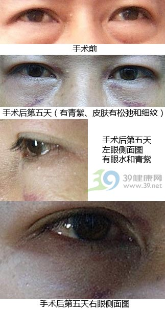 一位女士做眼袋手术的经历和忠告(图)