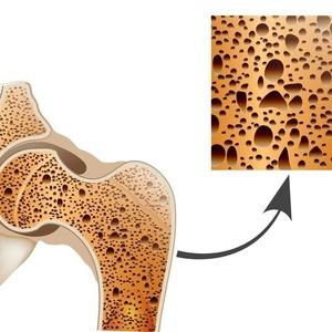 肩周炎,肩周炎按摩,中医治肩周炎,肩周炎穴位,如何治肩周炎?中医8大方法治疗肩周炎,肩周炎是肩并节囊和关节周围软组织的一种退行性、炎性病变。肩周炎临床表现为:多见于45岁以上的中老年人,肩周炎早期以疼痛为主,日轻夜重;肩周炎晚期则以功能障碍来主,外展、外旋及后伸等动作受限最明显。
