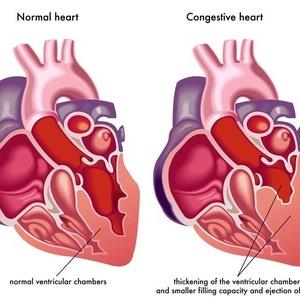 详细解读高血压性脑出血防治