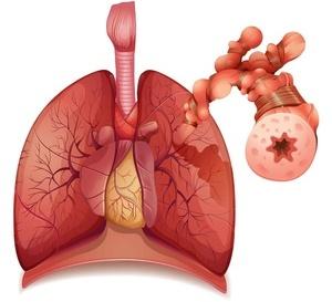预防老年性肺炎窍门多