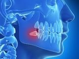 颈椎病的防治