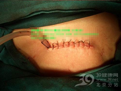 医师实拍:甲状腺肿瘤手术全过程(多图)