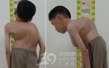 脊柱侧弯延误治疗病历