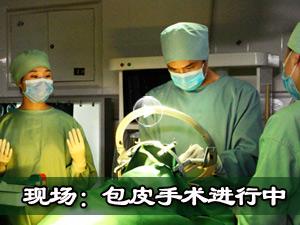 视频:包皮手术过程
