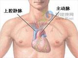心脏神经官能症