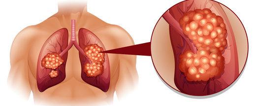前列腺癌为何难以早期发现?