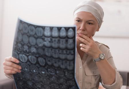女大学生患恐怖血管瘤病