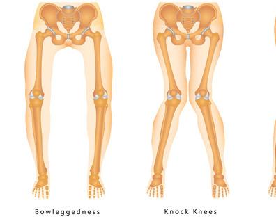 小腿骨折固定法 与大腿骨折固定类似