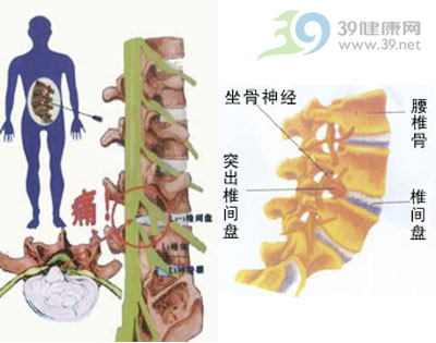 腰椎间盘突出症图片