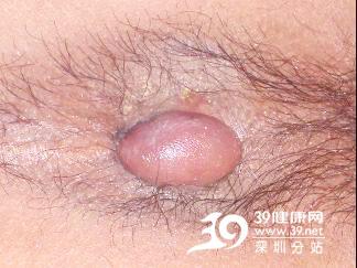 肛肠医院实拍6种痔疮清晰图 PPH术可消除(图)