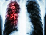 胸部X线检查