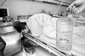 大学生打工当装卸工误喝固化剂 消化道被烧伤