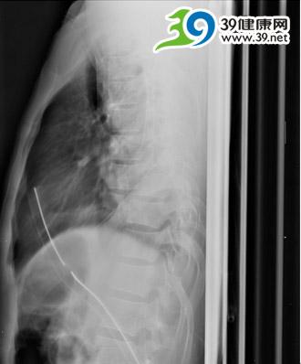 访骨科专家陈少文:十根螺钉支撑的胸椎