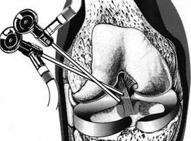 关节镜手术有什么优势?