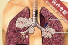 """肺癌:2个""""早""""最重要"""