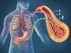B:全结肠癌根治术/乙状结肠癌根治术