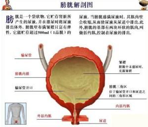 最适合膀胱癌患者