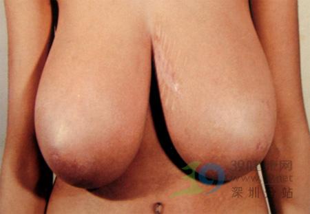 影响乳房发育的因素