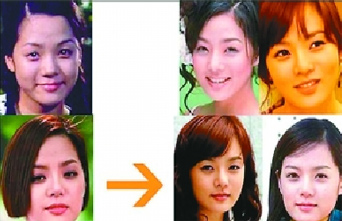 19位韩国女星整形前后大曝光