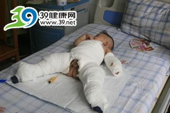 婴幼儿烫伤勿乱用药 紧急送医最重要