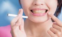 口腔保健远离四大误区