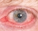 红眼病蔓延 预防从细节入手