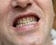 窝沟封闭 保护你的牙齿