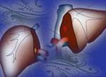 绝症不绝第2期:活体肝移植 你知道多少?