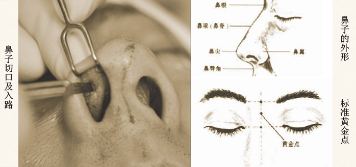 鼻整形概况