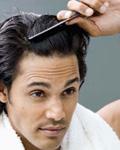 男性多见脂溢性脱发