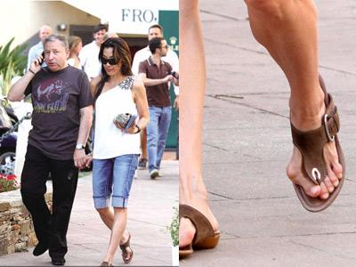 女明星爱穿高跟鞋惹出拇外翻