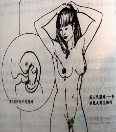 麦沛成解读乳房保健与疾病防治第2课:几种常见的乳房发育缺陷(图)