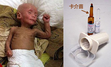 从婴儿全身萎缩谈卡介苗接种