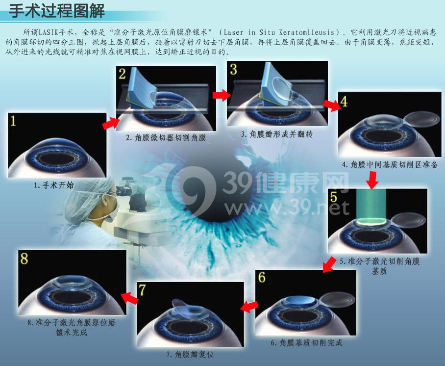 激光手术治疗近视过程