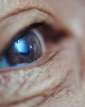 眼睛暴露14种病