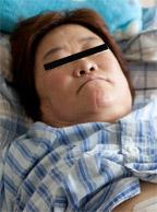 58岁谢阿姨接受袖状胃切除术