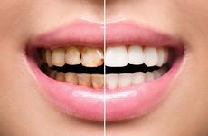 牙齿黄口臭怎么办?口腔卫生很重要