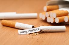 吸烟带来的肺癌患病率如何降低?一体化戒烟和肺癌筛查服务来助力