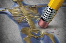 骨质疏松疼痛怎么办?骨质疏松,补钙不是万能的!