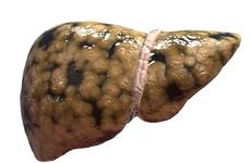 脂肪肝症状