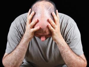 斑秃越来越大,该怎么处理?干预治疗需尽早!