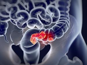这几类人易患大肠癌,肠癌筛查做起来!