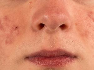 脸上长痤疮,令人烦令人恼!如何治疗脸上痤疮