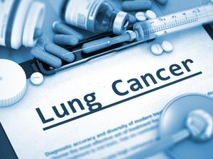 """吉喆因病去世!肺癌如此凶残,如何""""及时止损""""?"""