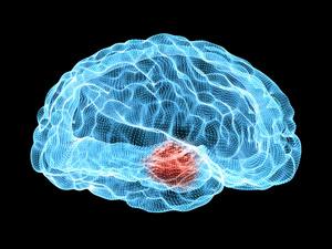 让人慢慢变丑的肿瘤――垂体瘤