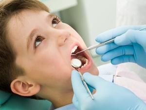 蛀牙怎样治?不同阶段的治疗方法不一样