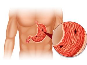 如何治疗胃溃疡?看完这篇文章你就知道了