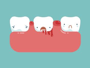 牙龈出血,心博天下官方网注册登入只因缺乏维生素?其实还可能是......