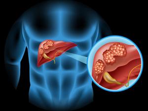肝癌吃什么对身体好?这四样东西需控制好