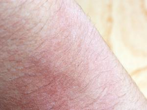 身上长了湿疹怎么办?长了湿疹可以吃辣吗?
